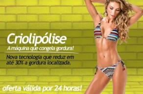 2 Sessões de Criolipólise - Reduz em até 30% a gordura localizada por R$150 em 3 Vezes Sem Juros