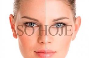 Skinboster Com Ácido Hialurônico Para Rejuvenescimento em 3 Vezes Sem Juros