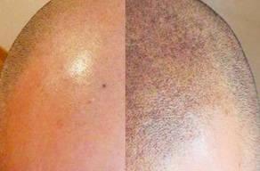 Micropigmentação Capilar em Área Pequena + Laser + Anestésico no Morumbi em 3 Vezes sem Juros