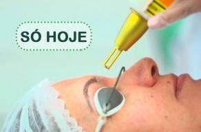 Só Hoje: Remoção De Micropigmentação De Sobrancelha em Moema em 3 Vezes Sem Juros