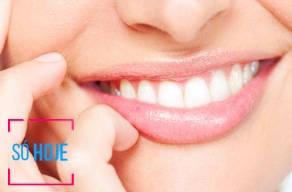 Lançamento: Toxina Botulínica Correção Do Sorriso Gengival em 3 Vezes Sem Juros