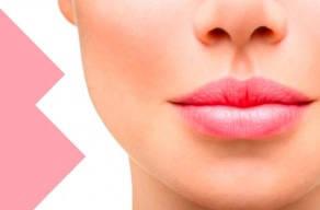 Só Hoje: Preenchimento Facial Com Ácido Hialurônico (bigode Chinês) 0,5 Ml Na Vila Matilde