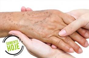 Melanose Solar Nas Mãos: 3 Sessões De Luz Pulsada + 3 Aplicações De Fator De Proteção Na Vila Mariana Em 3 Vezes Sem Juros