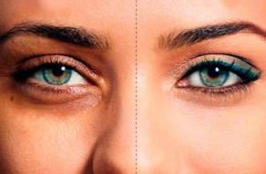 Imperdível: Clareamento De Olheiras com 5 Sessões Carboxterapia + Massagem Facial + Peeling Renova-Age + Esfoliação Facial em 3 Vezes Sem Juros