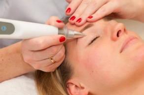 Rejuvenescimento De Pálpebras: 4 Sessões De Blefaroplastia Sem Corte Com Jato De Plasma + Higienização Facial.