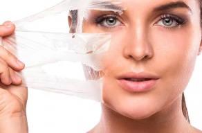 Imperdível: Peeling Químico Com Pré Peeling em 3 Vezes Sem Juros