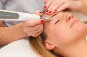 Só Hoje: 3 Sessões Remoção De Maquiagem Definitiva com Jato de Plasma em 3 Vezes Sem Juros