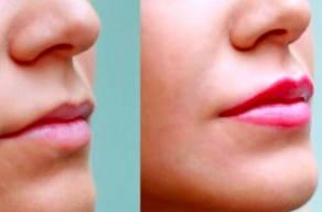 Batom Definitivo (Maquiagem Definitiva) Com Anestesia Total em 3 Vezes Sem Juros