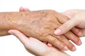 Melanose Solar Nas Mãos: 3 Sessões De Luz Pulsada + 3 Aplicações De Fator De Proteção Na Vila Maltilde Em 3 Vezes Sem Juros