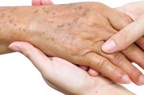 Tratamento para Melanose Solar Nas Mãos: 1 Sessão De Jato De Plasma + 1 Sessão De Luz Intensa Pulsada em 3 Vezes Sem Juros
