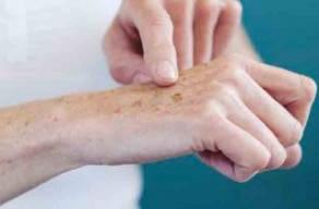 Tratamento Para Melanose Solar Nas Mãos: 1 Sessão De Jato De Plasma + 1 Sessão De Luz Intensa Pulsada Em 6 Vezes Sem Juros