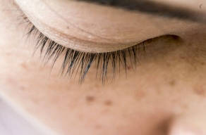 2 Regiões De Tratamento Para Melasma Injetável Com Blend De Ácidos