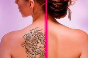 Remova Sua Tatuagem Com 15 Sessões De Laser Nd-yag